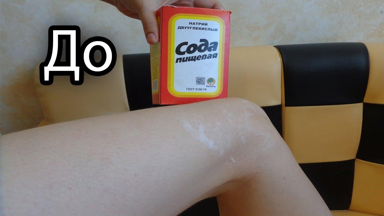 Убрать волосы с рук в домашних условиях навсегда