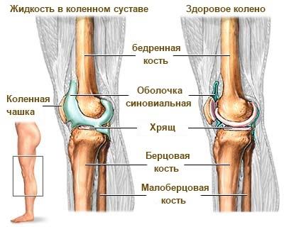 Жидкость в коленом суставе реактивный синовит коленного сустава что это такое